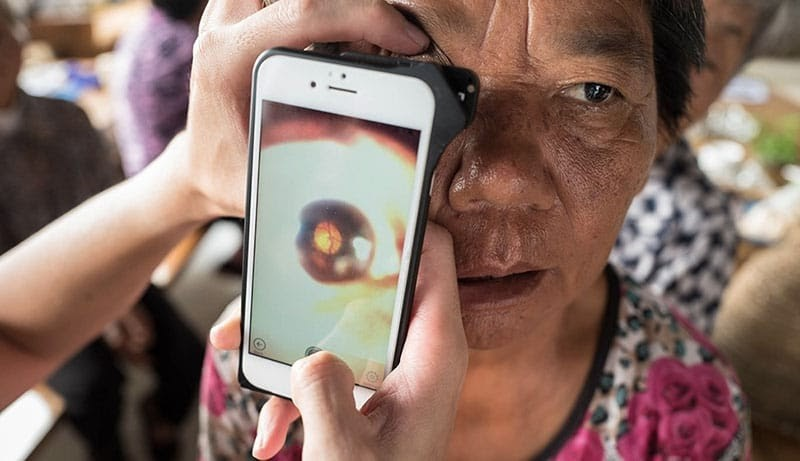 D-EYE for retinal screening in elderly population