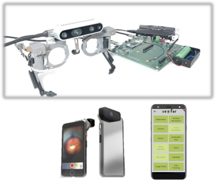 D-EYE digital ophthalmic camera attached to the smartphone